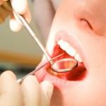 Preventivo denti fissi in un giorno